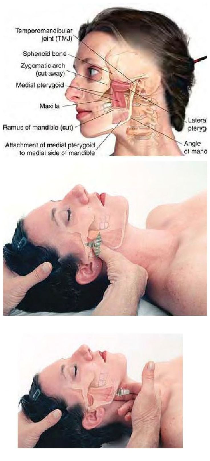 Massage Therapy ..........TMJ syndrome can be relieved through examination and treatment of the lateral and medial of the pterygoid muscles.......The Pterygoids are jaw (temporomandibular joint, or TMJ) muscles that radiate in a winglike pattern .....Kur <3