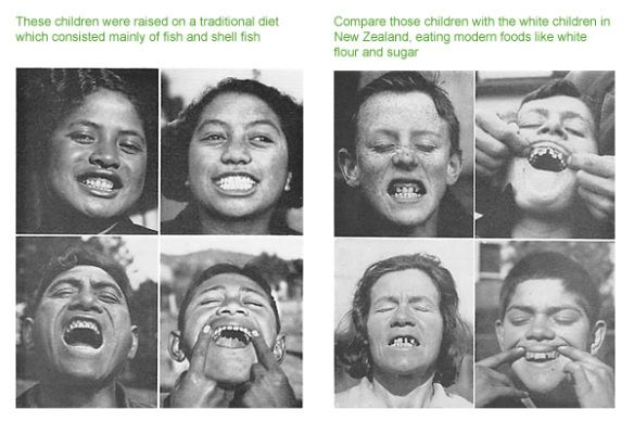 Tooth-decay-natural remedies. This is a jackpot pin! This woman has tons of healthy recipes on her blog!