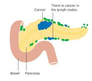 A Diabetes Diagnosis May be First Symptom of Pancreatic Cancer