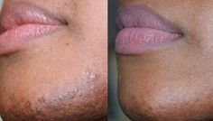 How To Stop Female Facial Hair Growth Using Diet And Nu.....