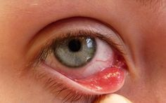 Home Remedies for Pink Eye Treatment (Get Rid of Pink Eye) Home remedies for pink eye treatment. How to get rid of pink eye naturally? Pink eye remedies to get rid of pink eye fast and overnight simply. Pink eye