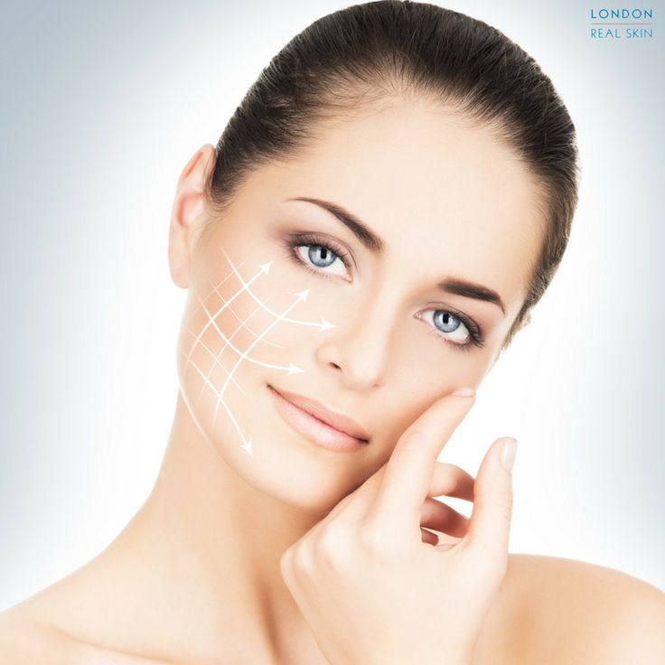 Give your whole mid and lower face a natural but noticeable 'lift' with a non-surgical facelift! Dermal fillers will give back volume to your cheeks, relax your nose-to-mouth lines (nasolabial folds), lift downturned mouth corners and firm your jawline and jowl area. #skincare #dermatology