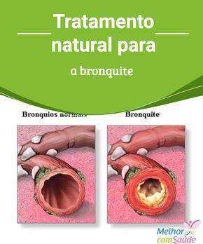 Bronquite: Conheça tratamentos naturais para este mal A bronquite é uma inflamação aguda da traqueia e dos brônquios causada por uma infecção bacteriana. Conheça dicas para se curar o mais rápido possível.