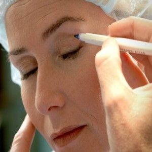 There are three main types of cosmetic problems that tend to affect a person's eyes: sagging upper eyelids, thinning eyelashes, and eye bags.