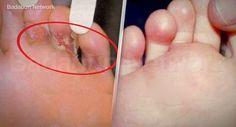 Badabun: 5 remedios naturales para eliminar los hongos de los pies en días