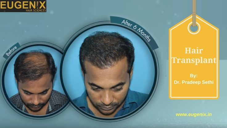 An amazing result in just 6 months. This is one of our hair transplant patients who was dealing with severe hair loss and he has undergone a hair transplant surgery in Delhi at Eugenix. He is fully satisfied with his surgery.