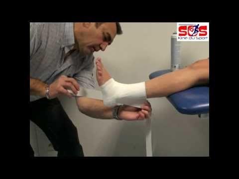 Strap rapide du ligament collatéral latéral sur entorse de cheville.