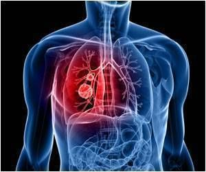 Rationale for Use of Targeted Immunotherapy in Sarcomatoid Lung Carcinomas Highlighted