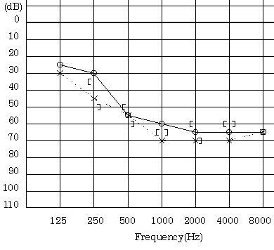 オージオグラムという聴力検査結果のグラフです。このオージオグラムは2001年に測定した自分の結果です。高音域になるほど、聴力が落ちている様子が判ります。