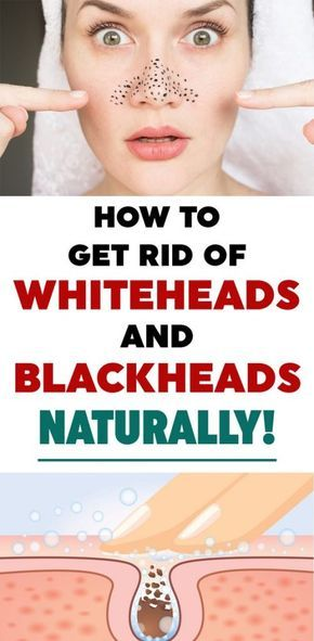 Blackheads are scientifically known as Open Comed…