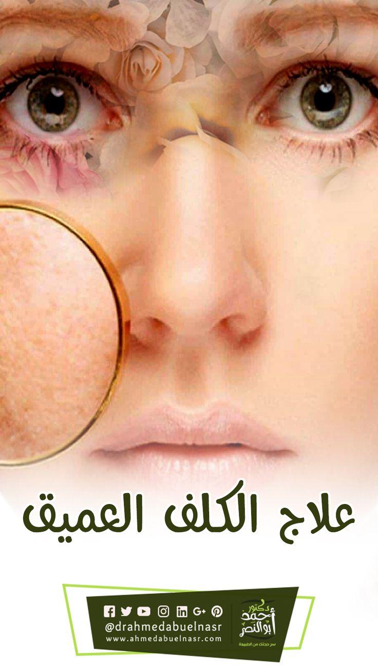 علاج الكلف العميق Glasses Glass