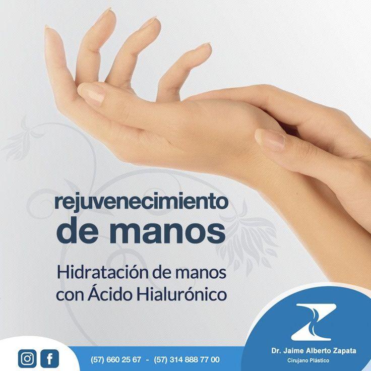 Rejuvenecimiento de Manos con Ácido Hialurónico  Consiste en la infiltración de ÁCIDO HIALURÓNICO en el dorso de las manos para producir un efecto hidratante y un aumento del grosor del tejido subdérmico gracias a la capacidad de retener agua del ácido hialurónico.  Para ti que siempre estas buscando lo mejor, Dr. Jaime Alberto Zapata - Cirujano Plástico  Cirujano Plástico - Miembro de la SCCP y SBCP.  #rejuvenecimientodemanos #acidohialuronico  #cirugiaplasticacolombia…