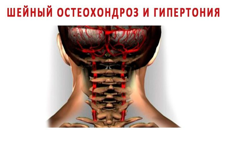 Лучше правильно крутить шеей, чем пить горстями таблетки от давления и жить в постоянном страхе инфаркта и инсульта!