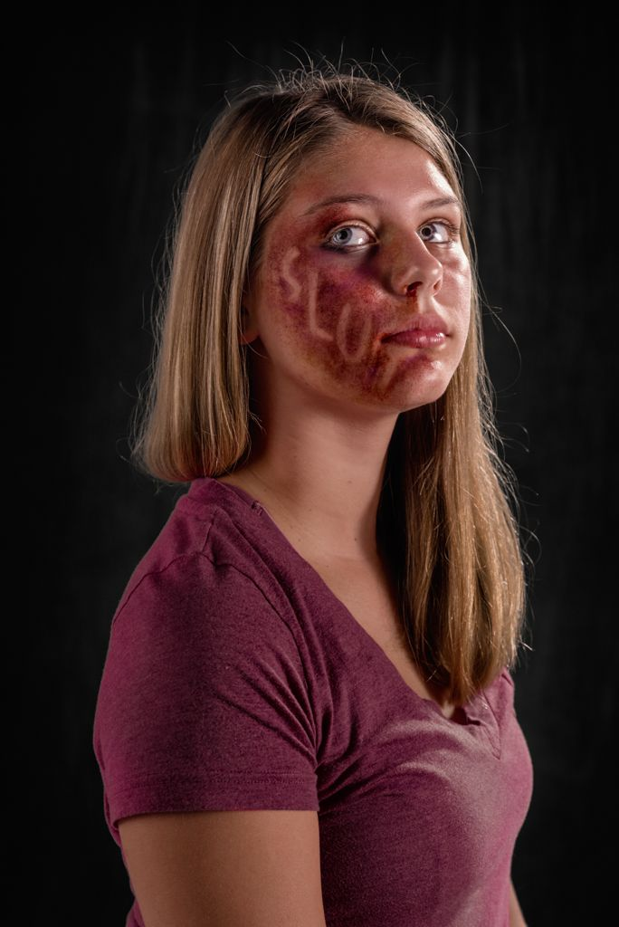 The Weapon of Choice Project was conceived to provide a visual demonstration of the power of verbal abuse, and it is meant to provoke a conversation about the problems of domestic violence, child abuse, and bullying