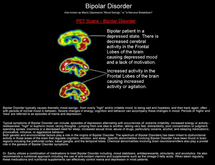 bipolar disorder with manic depression Bipolar disorder, also known as manic depressive disorder or manic depression, is a serious mental illnessit's a disorder that can lead to risky behavior, damaged relationships and careers, and.