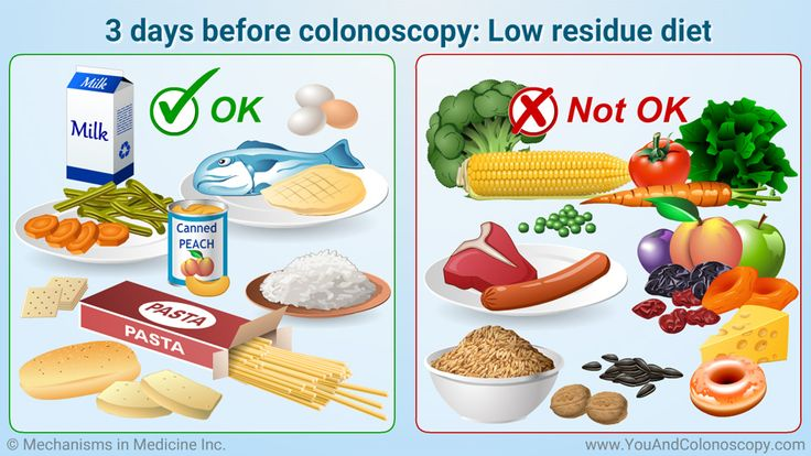 What is a colonoscopy and how do I prepare for it? Low