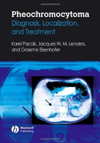 Pheochromocytoma: Diagnosis, Localization, and Treatment by Karel Pacak. $77.11. Publisher: Wiley-Blackwell; 1 edition (June 1, 2007). Author: Karel Pacak. 184 pages