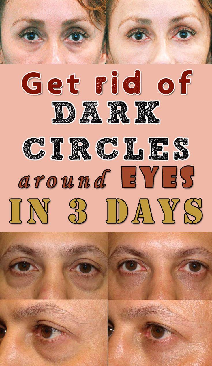 Get rid of dark circles around eyes in 3 days ...