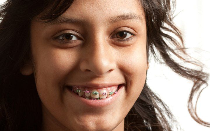 Orthodontic Braces: What Are the Different Types of Braces?