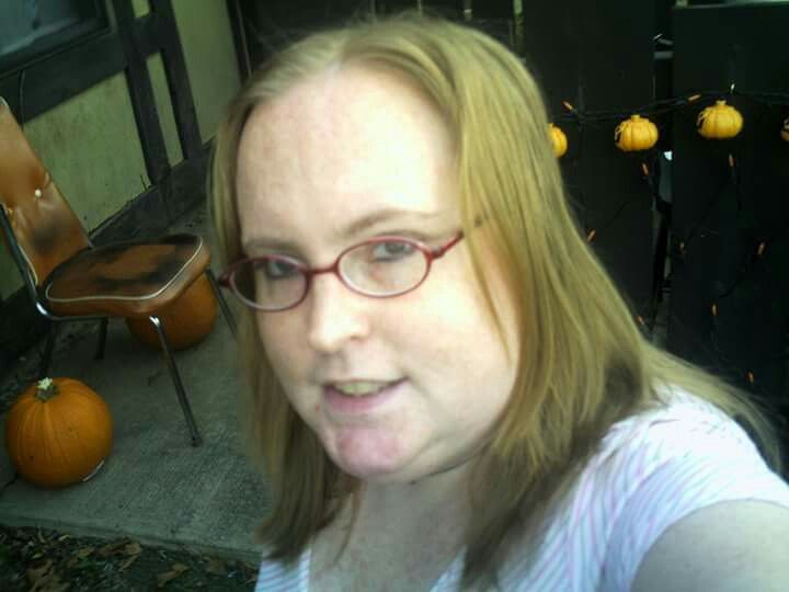 """Another picture of prednisone face. Also called """"moon face"""""""