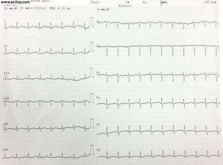 EKG RBBB