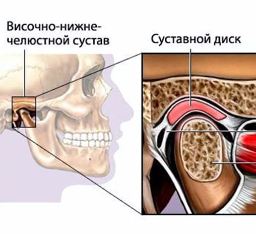 Экология жизни. Здоровье: Височно-нижнечелюстной сустав - ВНЧС - располагается в точке сочленения головок нижней челюсти и височных костей черепа. Между головками и суставными впадинами височных костей в норме должен располагаться суставной диск.
