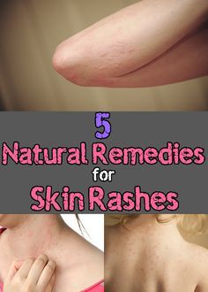Treating rashes with chemicals does not always provide the necessary effect, or even may cause a more severe irritation. Instead, we provide you a collection of natural remedies which do not have side effects and will help you calm the itch.