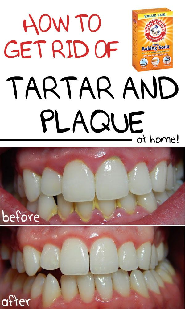 How to remove plaque and tartar from home with baking soda, hydrogen peroxide, fruit and other natural treatments: http://healthywildandfree.com/remove-plaque-tartar-at-home/
