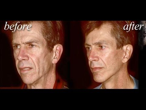 Most Trusted Face Lift Surgery Doctor In Orange County   CoastalSurgicalCenter.com