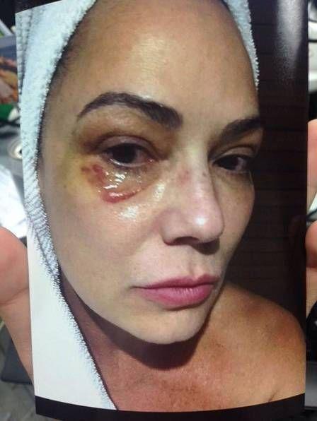 O EMPENHO: Lírio Parisotto cita briga com Luiza Brunet durant...