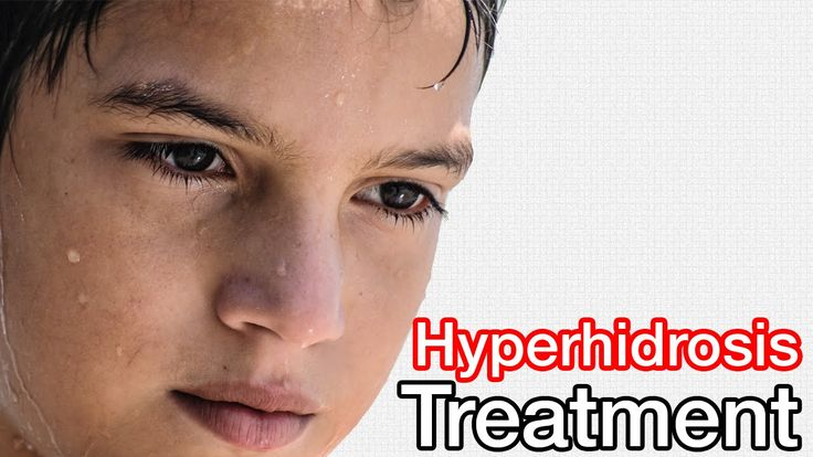 Hyperhidrosis Treatment // Learn How I Treated My Hyperhidrosis Naturally!