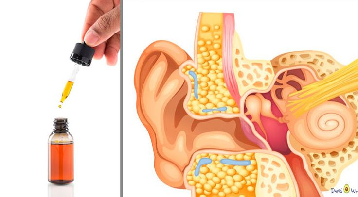how to get rid of earwax buildup naturally
