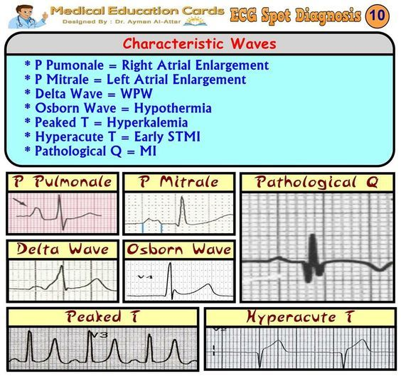 Quick Reference: Characteristic ECG Waves