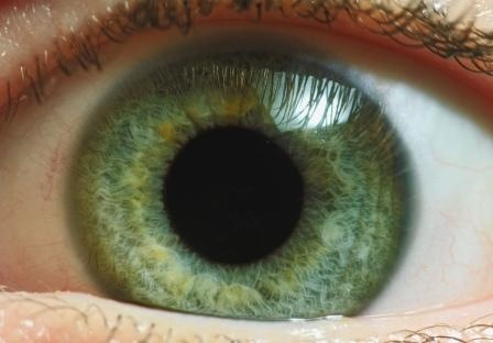 Only about 2% of the world population has green eyes. It's one of the rarest types of eye color. They're most common among people of Northern European descent, because they're also genetically predisposed to produce less melanin.