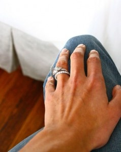 cure for wedding ring rash where was this when i was getting that annoying rash - Wedding Ring Rash