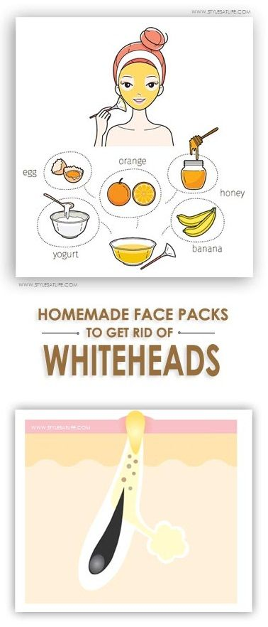 Whiteheads or closed comedones are a type of acne. You can commonly see whiteheads on nose, chin and face. Here are the best Face Packs for Whiteheads at home.