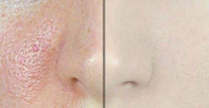 La peau de notre visage est fragile et facilement impactée par différents facteurs internes et externes. Pollution, maquillage et autres produits de «soin» peuvent altérer sa qualité et favoriser l'apparition de problèmes cutanés tels que les irritations, les imperfections et les pores dilatés. Pour lisser votre épiderme et réduire la taille de vos pores, essayez ces 4 remèdes naturels, simples et très efficaces.  Les pores sont ces trous minuscules à la surface de la peau et qui lui…