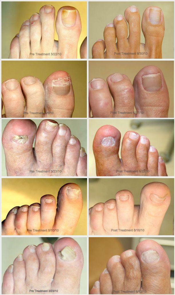 Toenail Fungus Under Toenail - http://www.mycutenails.xyz/toenail-fungus-under-toenail.html