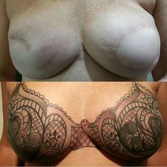 Double mastectomy scar cover up by Nick Manning @ Pretty in Ink Tattoo, Bakersfield, CA! ***please save and share!***