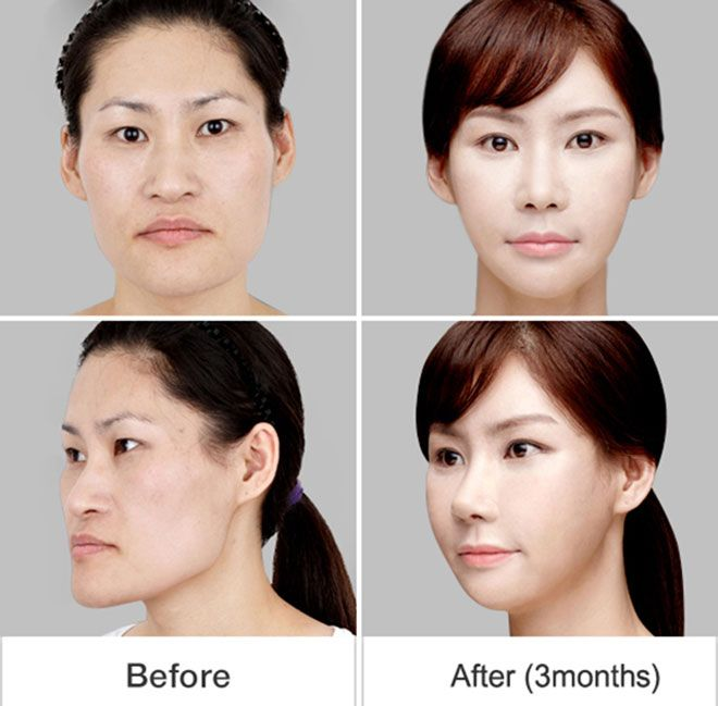 Korean Face Plastic Surgery Chin Lips And Nose Before