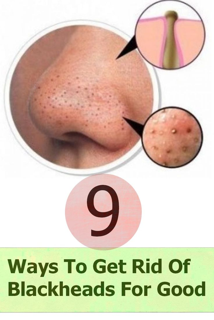 There's a couple great home made masks in this...9 Ways To Get Rid Of Blackheads For Good