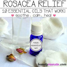 10 essential oils for rosacea: Naturally calm painful, burning and inflamed skin with essential oils! Rose essential oil has strong anti-bacterial, anti-inflammatory, anti-aging and astringent properties. It balances sebum production in skin affected by rosacea and also calms redness. Rose essential oil smells absolutely sensational so it's a great way of smelling gorgeous while naturally healing your rosacea!