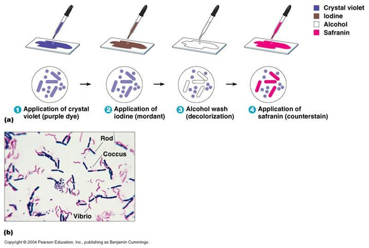 Gram stain testing in laboratory