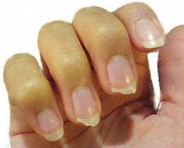How do you stop nails from breaking? - 18 Tips to Prevent Nails from Breaking, Splitting, Peeling, Chipping, by Rosie2010