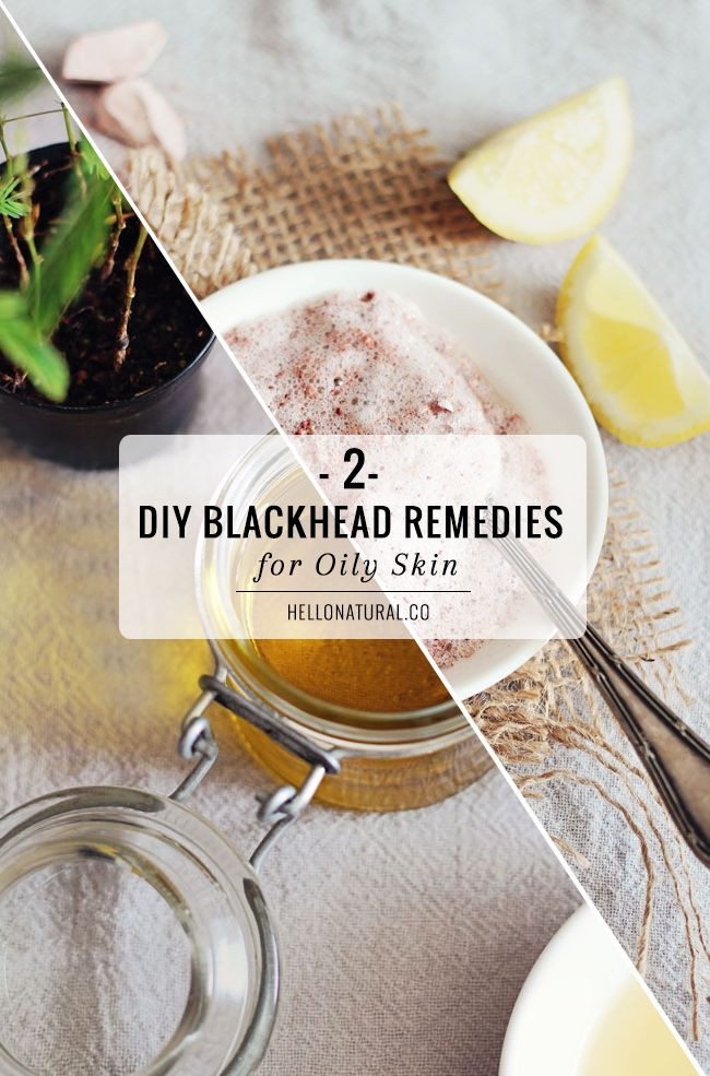 2 DIY Blackhead Remedies for Oily Skin | http://hellonatural.co/2-diy-blackhead-remedies-oily-skin/