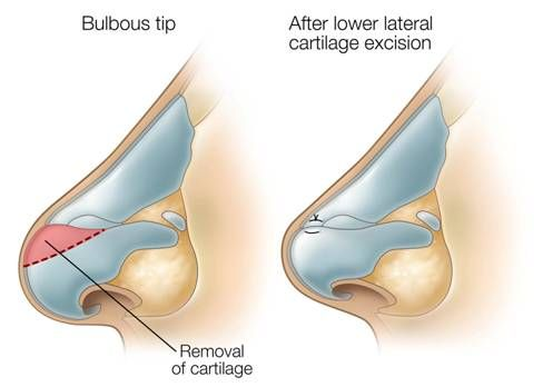 Bulbous Tip Rhinoplasty Illustration from SpaMedica Toronto