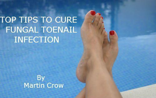 TOP TIPS TO CURE FUNGAL TOENAIL INFECTION: How to: The Treatment and Cure of Toe Nail and Fingernail Fungus and Athlete's Foot by Martin Crow, http://www.amazon.com/dp/B008FPVQAK/ref=cm_sw_r_pi_dp_XOE3sb0XZSHDW