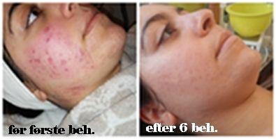 Lider du af acne problemer? Vi kan hjælpe dig http://cliniquedeprairie.com/page76.php www.cliniquedeprairie.com