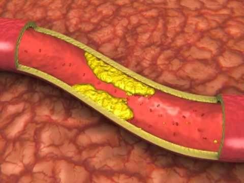 Low Cholesterol Diet   High Cholesterol Foods   HEART UK   Expert advice from HEART UK