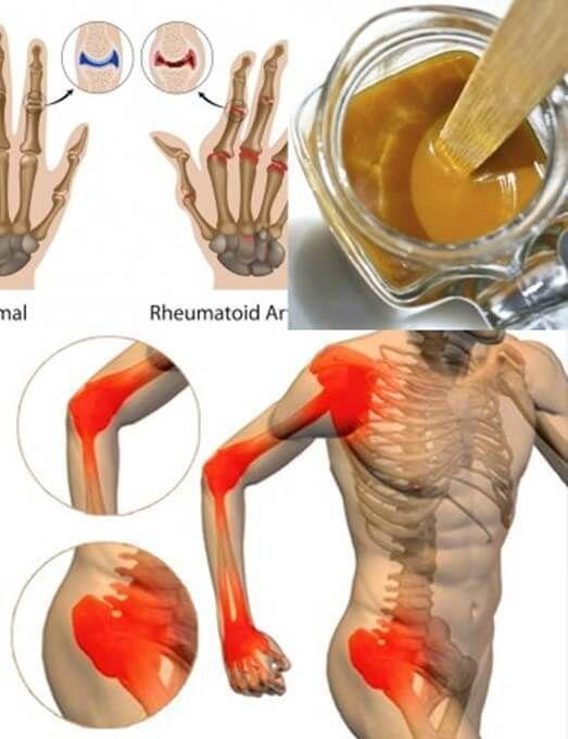 La curcuma offre una moltitudine di benefici per il nostro organismo. Ricca di proprietà, la curcuma è antinfiammatoria, antiossidante ed anti-invecchiamento. Molti sono gli studi scientifici dedic…